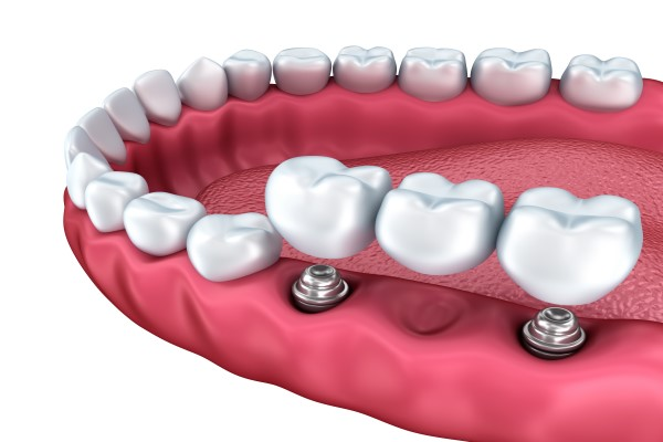 Benefits Of An Implant Supported Bridge Over A Traditional One