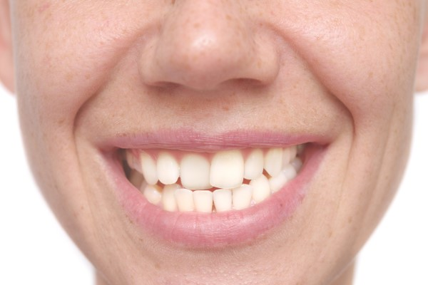 FAQs About Six Month Smiles
